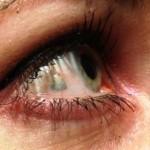 La última moda estética: implantarse en el ojo una joya