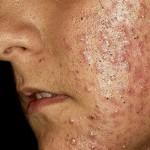 ¿Problemas de acné? Descubre algunos datos de gran interés