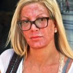 La actriz Tori Spelling sufre un resultado nefasto con su último tratamiento de belleza